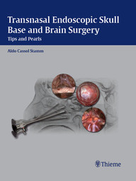 Transnasal Endoscopic Skull Base and Brain Surgery. Tips and Pearls